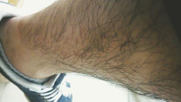 男生怎么永久去除腿毛男?
