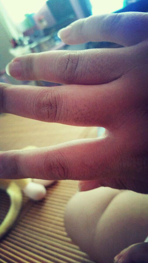 手被蒸烫伤怎么办_怎么办, 手被蒸汽烫伤 了!