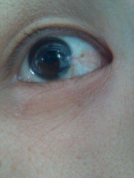 黑眼球上有个白点图片_我的是进去电焊铁渣还是磨件铁渣,取出后黑眼球留下了个