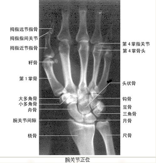 小孩肘关节解剖图