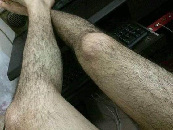 女生腿毛怎么彻底去掉