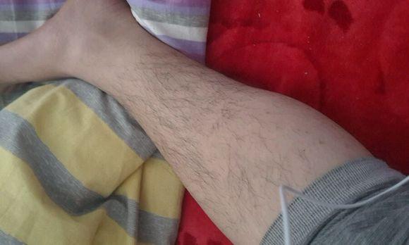 男士腿毛长有什么原因