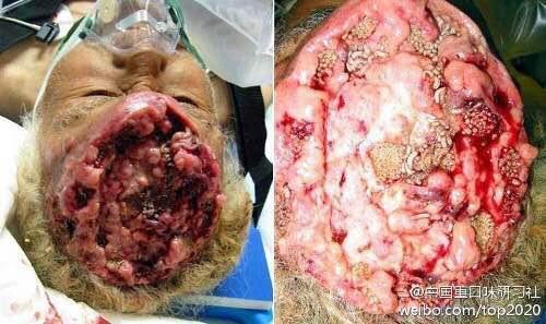 寄生虫上脑,图片很可怕,被恶心到了图片