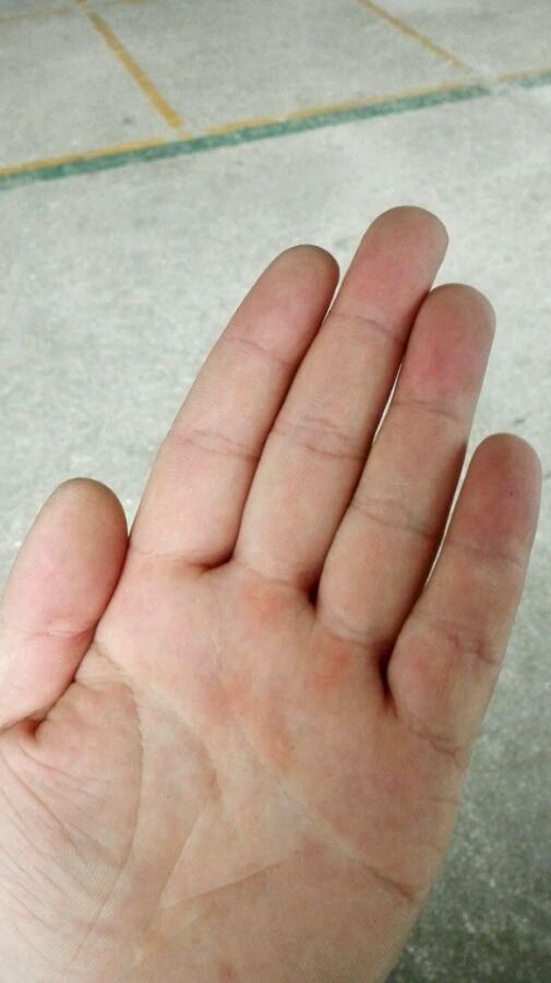手指10个簸箕是什么命