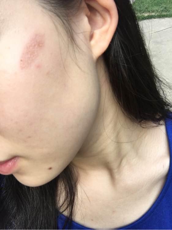 被卷发棒烫了脖子瓶盖大的水泡发黑没爆会留疤吗图片