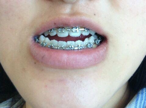 地包天20年,已于2月份拆了钛板和牙套,保持器正畸ing图片