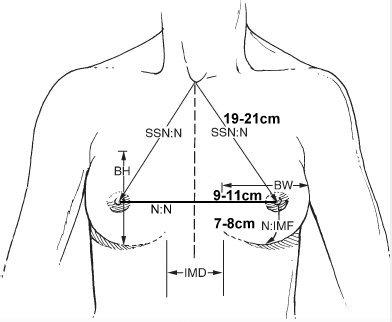 疼痛疼痛部位在锁骨下方到乳头上方整个区域但以左胸为.