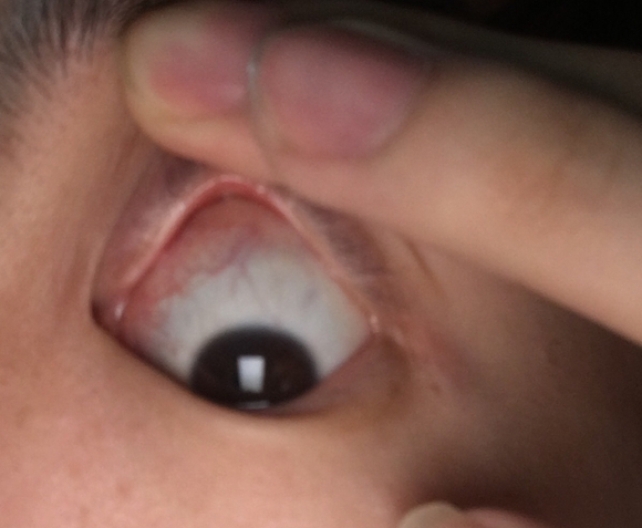 眼皮肿了两天,今天翻开上眼皮看,看到白眼珠上面一大片红血丝图片