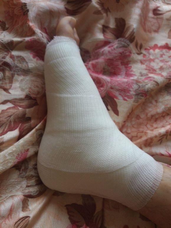 回复:有没有喜欢自己脚打石膏绷带的男生?