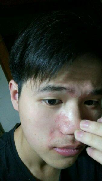 应该如何治疗,可能是激素脸加溢脂性皮炎图片