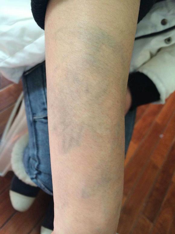 纹身遮盖烫伤烟疤纹身记录图片