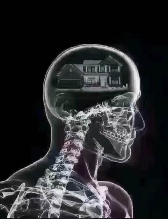 最近总是头痛,睡不着,今天去医院做了个脑ct,医生说嗨嗨