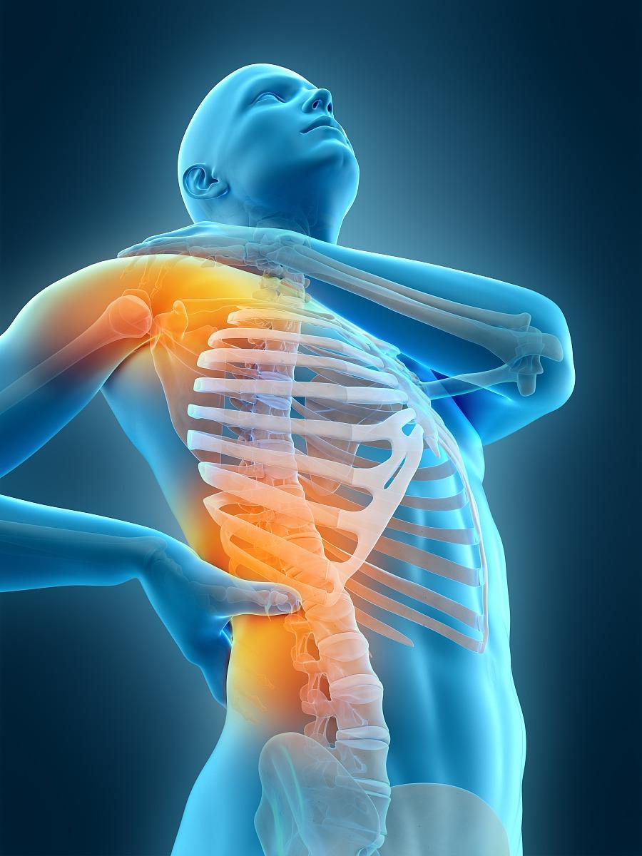 腰部骨骼固)�_科学,痛苦,腰部,油漆罐,人体结构,垂直画幅,动物骨,计算机制图,骨骼
