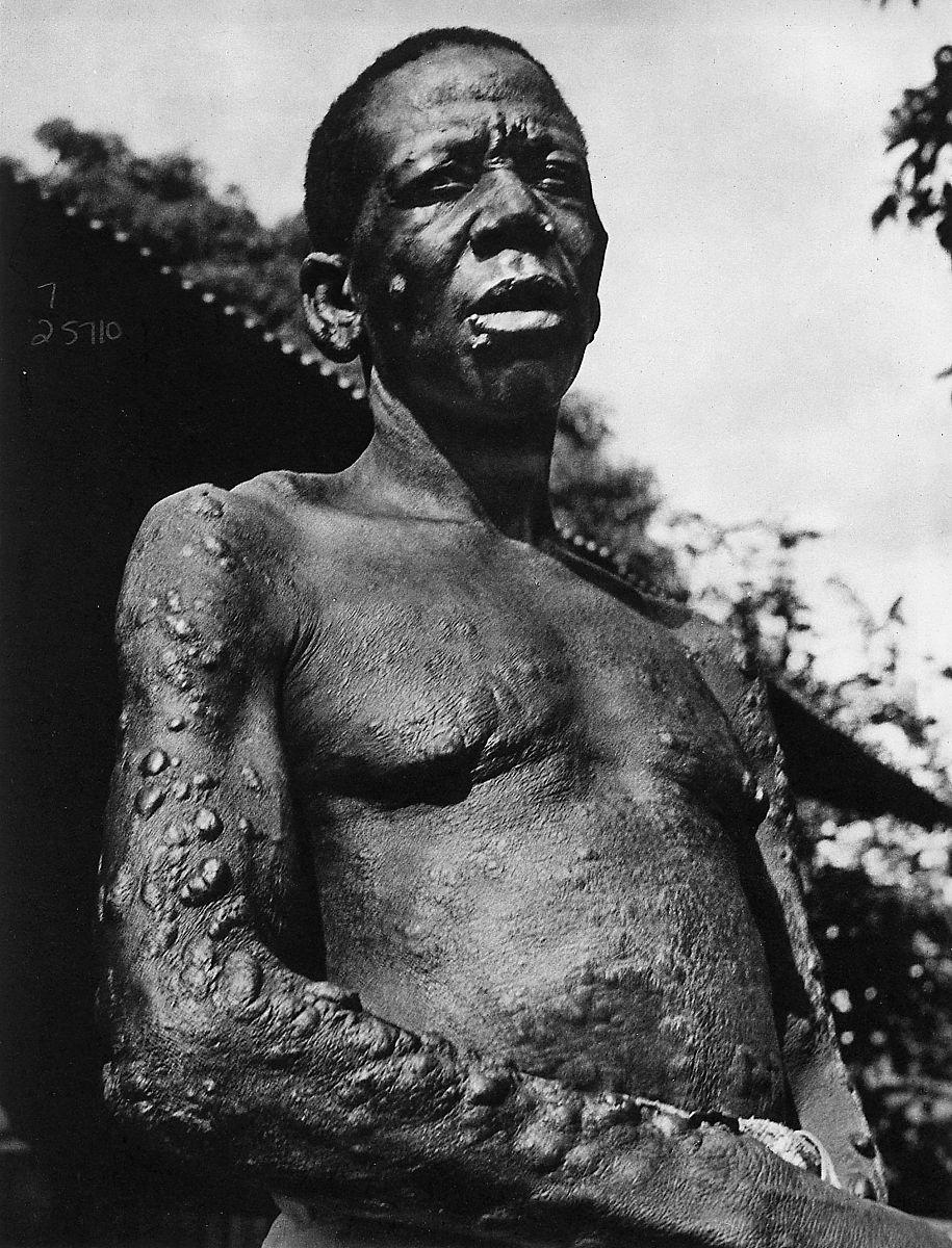 患有麻风病的人(汉森病).麻风分枝杆菌是麻风病的病原体.图片