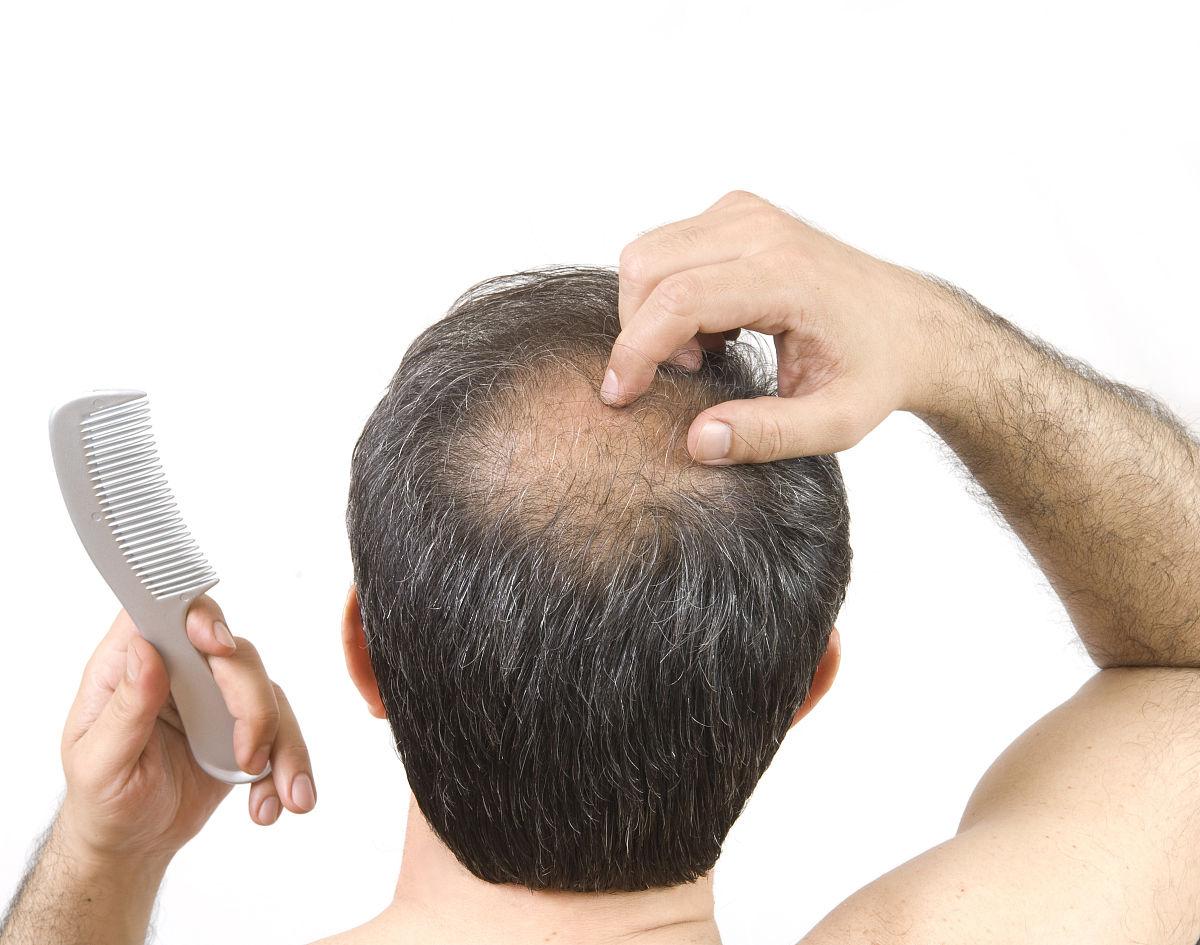仅男人,一个人,损失,仅一个男人,脖子,头发,仅一个中年男人,发型,动物图片