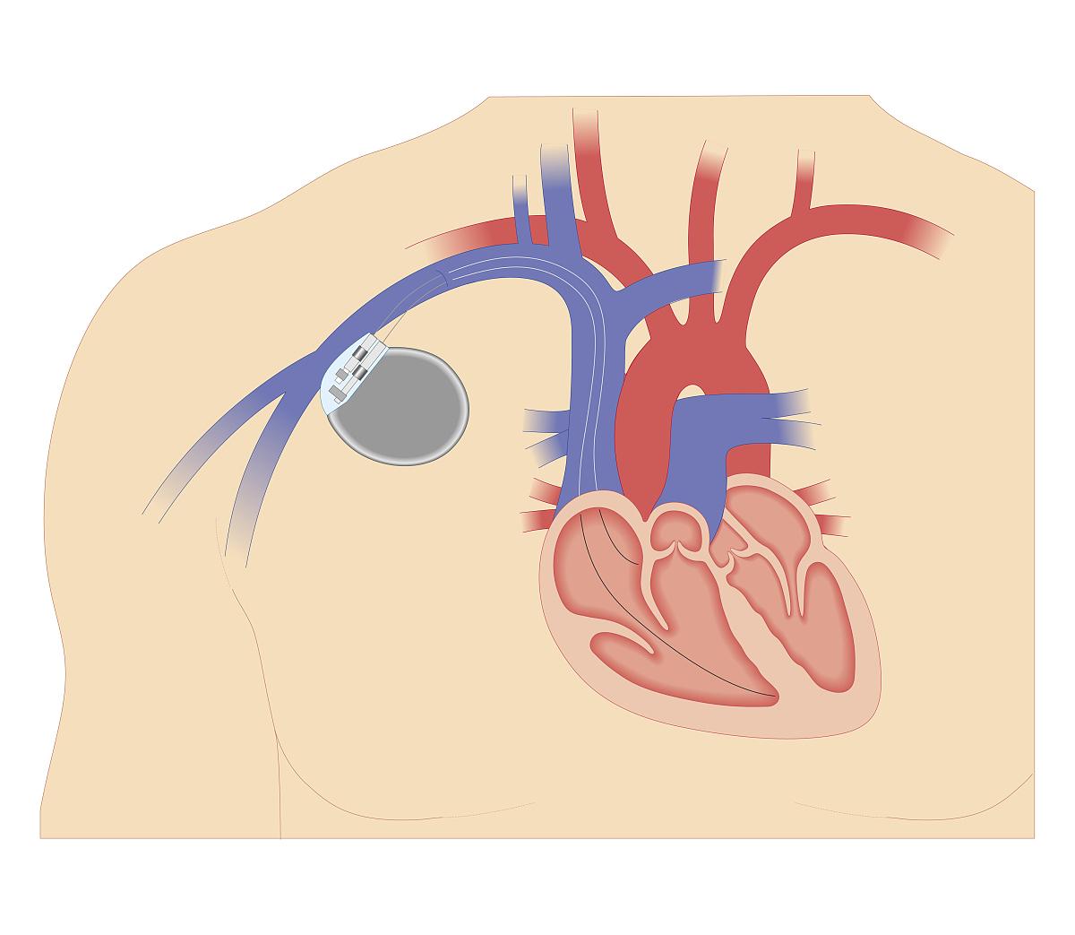 心脏起搏器横截面生物医学图解图片