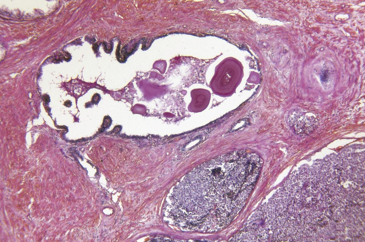 腺+��\y���l9�.����(c9��_前列腺腺癌