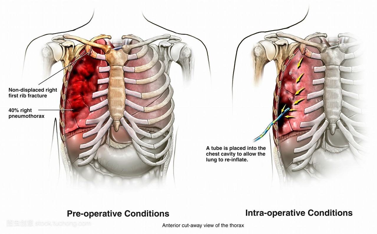 吸的时候右胸口肋骨下面疼是怎么回事图片