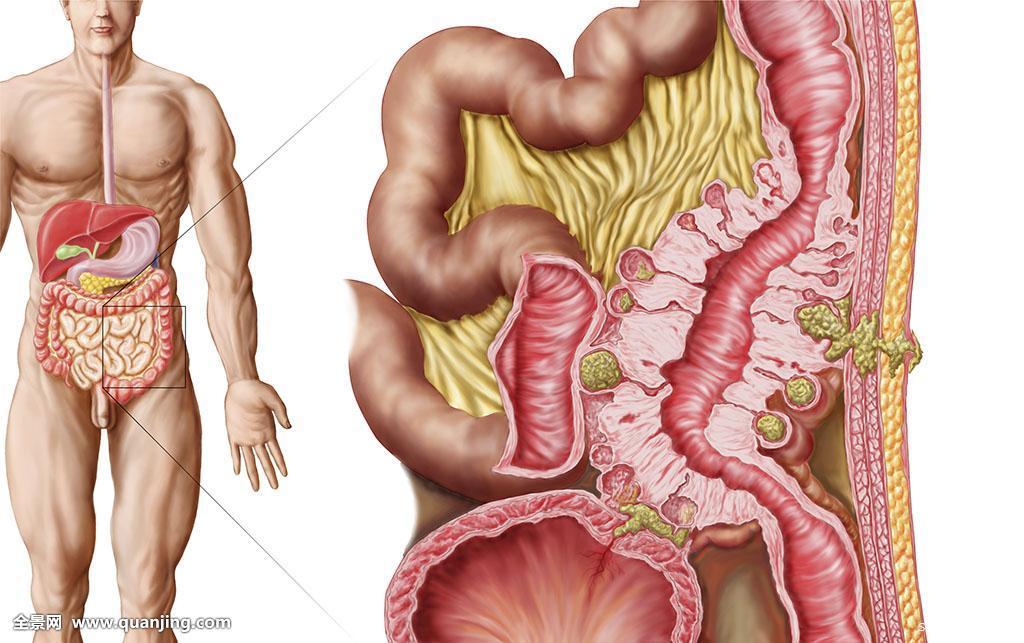 肠胃在人体哪个部位
