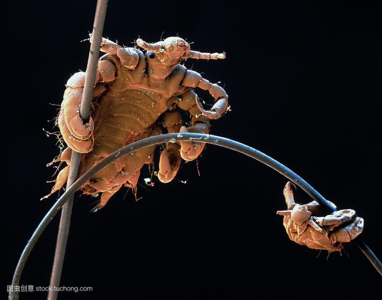 头发上虱子显微镜分享展示图片