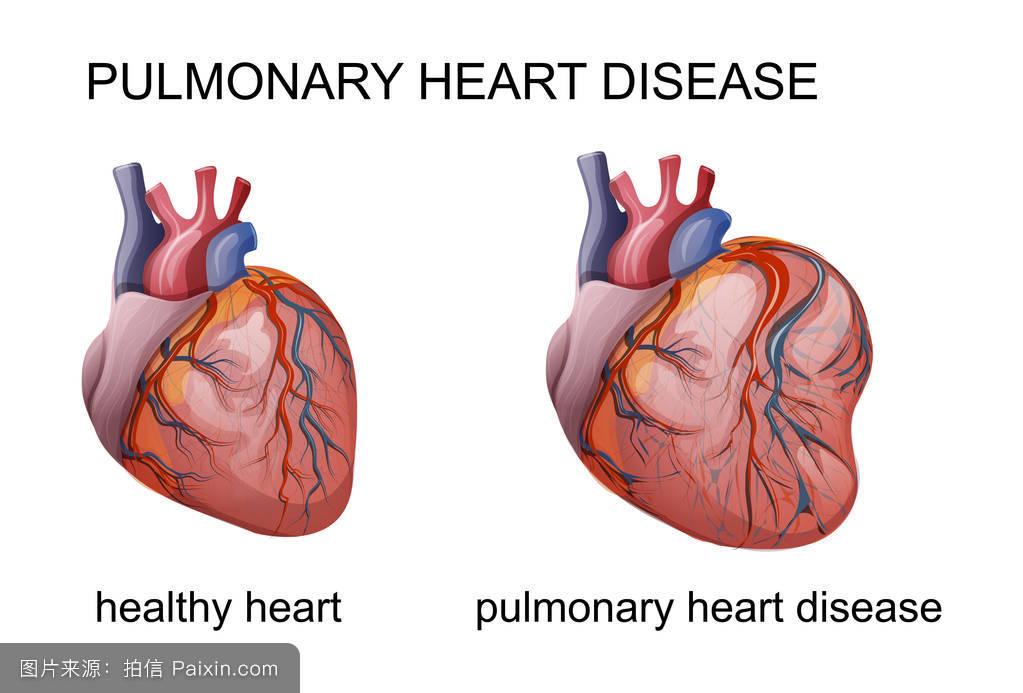 心脏不是在左边么,但是为什么我心疼是在右边图片