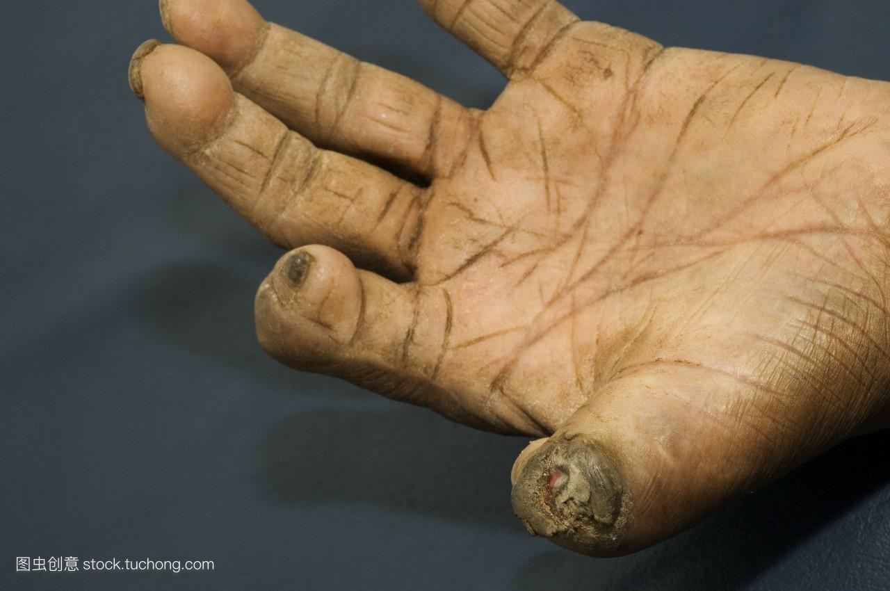 汉森病,手,皮肤,皮,慢性病,外皮,麻风病图片