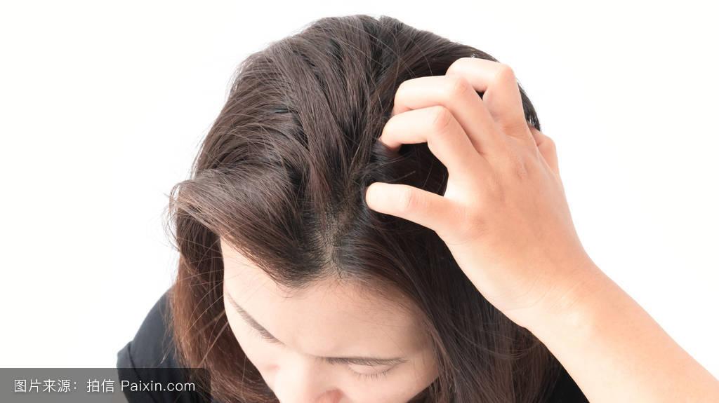 头发上长的虱子的图片展示图片