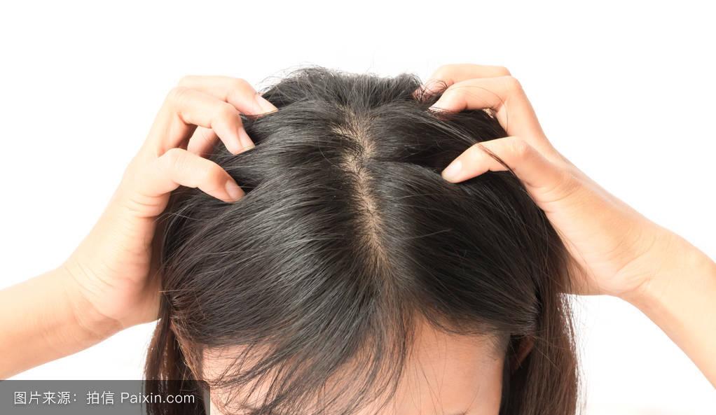 人类头发上的虱子图片展示图片