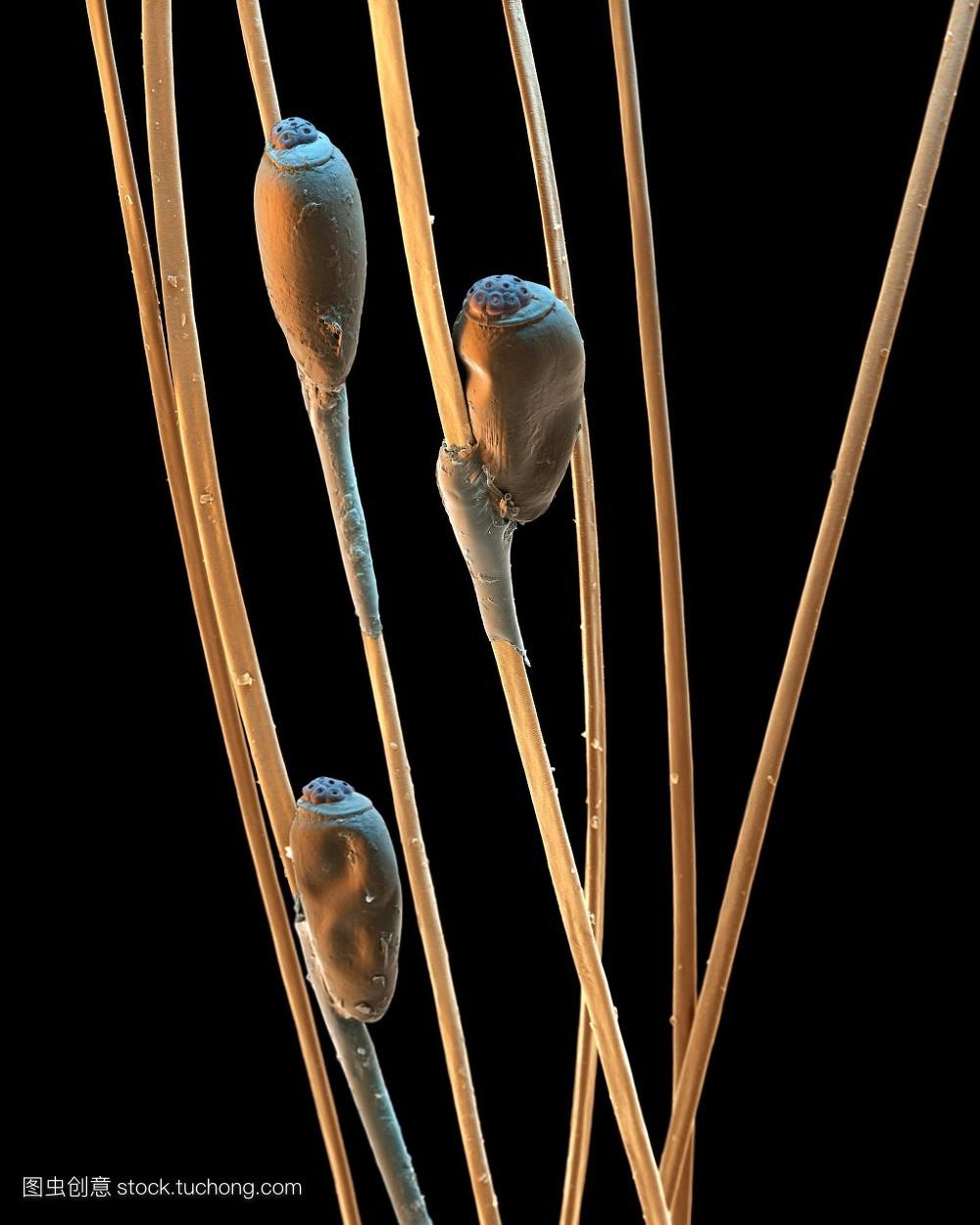 自然,野生动植物,植物学,头发,生物学,无脊椎动物,显微成像,虱子,伪色图片