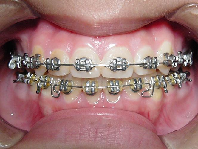 自锁牙套和普通牙套_吧_