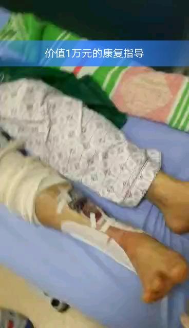 脚跟骨骨折图片_跟骨骨折吧-百度贴吧--跟骨骨折康复乐园--这里是跟骨骨折患者 ...