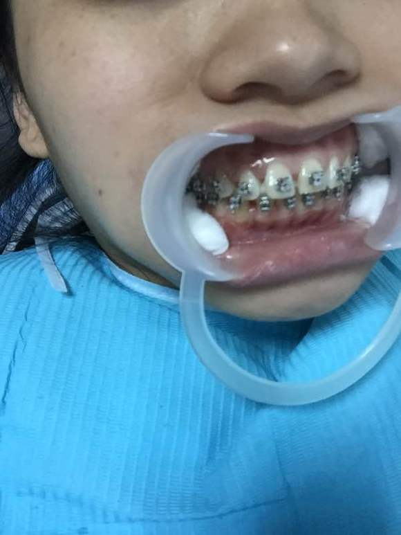 自锁托槽图片_【图片】昨天上钢牙了,自锁钢托槽【矫正牙齿吧】_百度贴吧