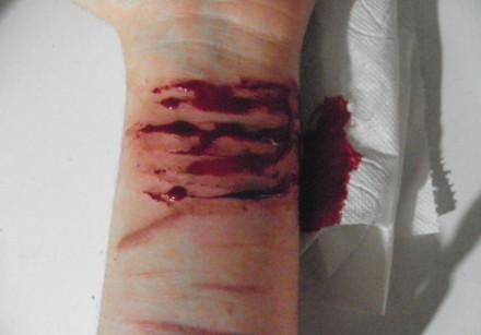 胳膊被玻璃划伤图片_自残手臂流血图_自残手的什么部位比较好?,累的手臂正放在