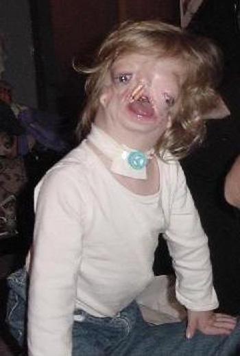 世上最丑的人的照片_世界上最丑的女人是谁?