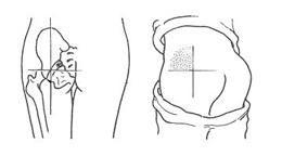 肌肉注射定位_【与君共勉】肌肉注射方式与部位。_trans吧_百度贴吧