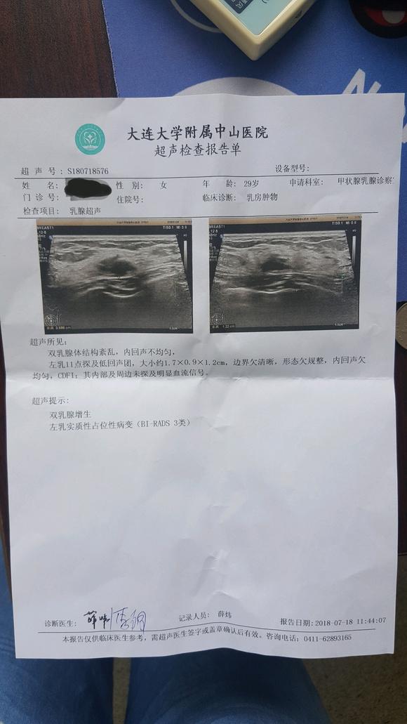 乳腺结节的治疗_29岁乳腺结节,钼靶4a,彩超一次4a一次3类_乳腺吧_百度贴吧