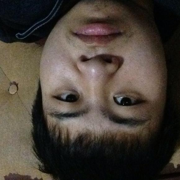 地包天面相_25岁,有比较严重的反颌(地包天)
