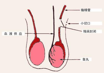 性交中的鸡巴_性交前阴茎流出来的透明液体是什么