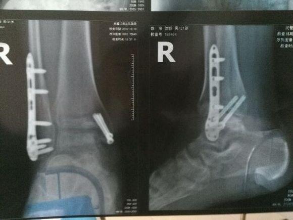 內外踝骨折 內踝半脫位四個月 現在走路基本正常 就是腳掌圖片