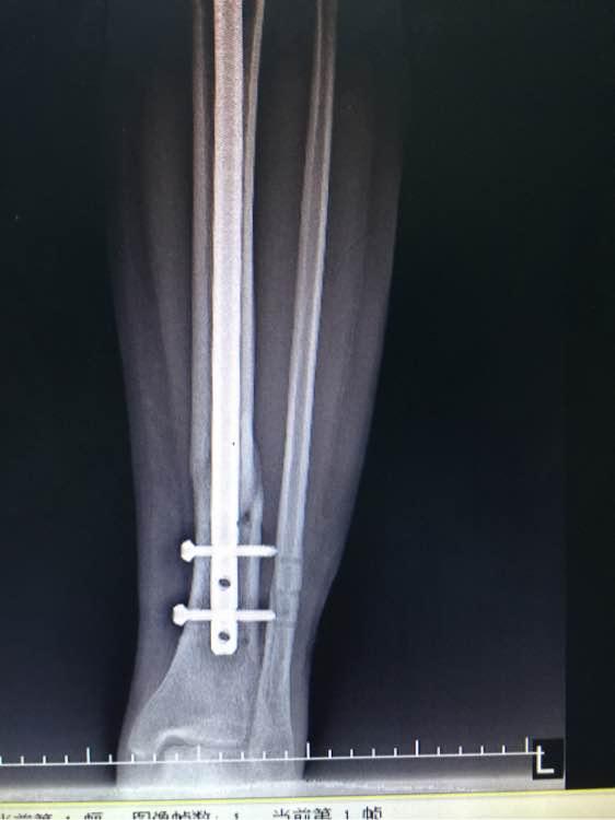 脛腓骨螺旋形骨折內固定術后七個月的片子,還不愈合……多久才能圖片