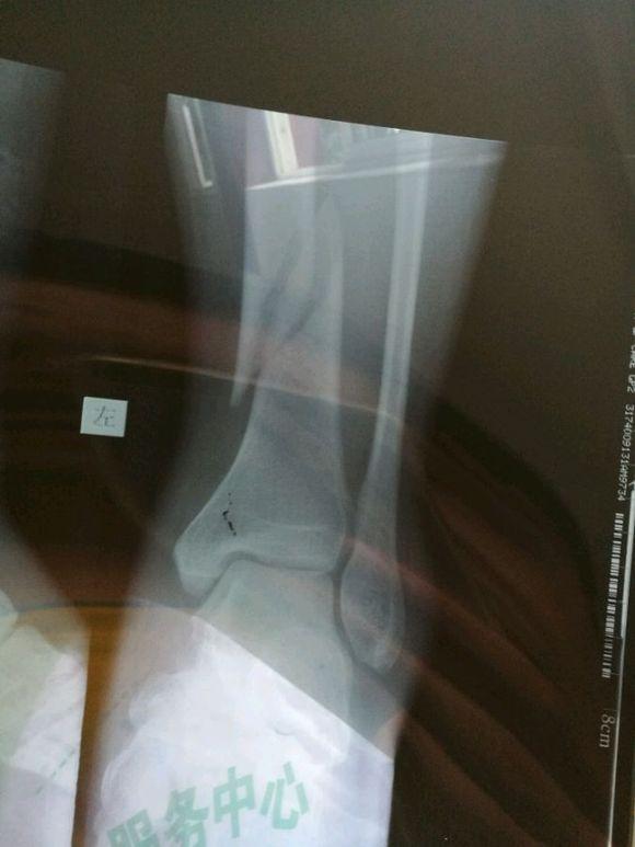 今天剛拍的片,左脛骨螺旋形骨折圖片