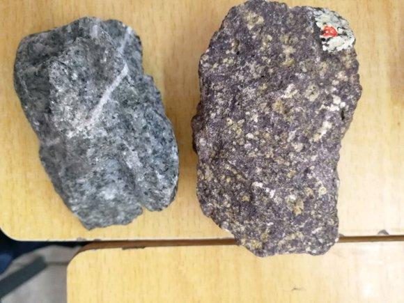 一個正確對待扁桃體結石的方法圖片