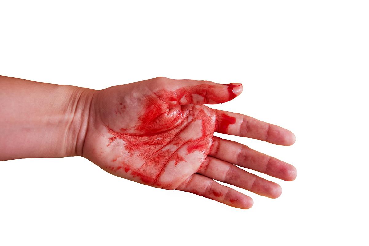 三角包书皮图解_伤口画法图解_伤口画法图解分享展示